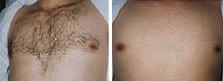 Die Brust nach dem Einschub implantow